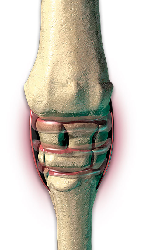 inflamemd joint
